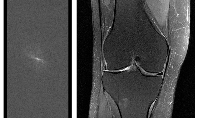 Raw MRI data before it's converted to an image, shown alongside an MRI image of the knee reconstructed from fully sampled raw data.